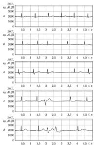 Примеры ЭКГ при нормальном синусовом ритме (а) и при различных нарушениях ритма (б, в, г, д)