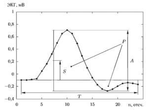 Иллюстрация вычисления признаков формы QRS-комплекса