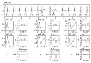 Пример вычисления признаков формы и показателя близости форм D1ij для QRS-комплексов одинаковых (б и г) и различных (в) форм, взятых из одной и той же реализации ЭКГ (a)