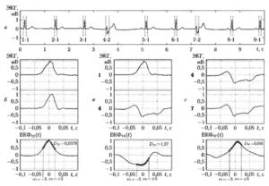 Пример вычисления ВКФ и показателя близости форм DHij, для QRS-комплексов одинаковых (б и г) и различных (в) форм, взятых из одной и той же реализации ЭКГ (а)