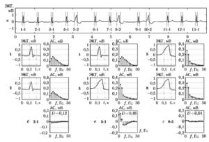 Пример вычисления амплитудных спектров (ЛС) и показателя близости форм D1Hij для QRS-комплексов одинаковых (б и г) и различных (в) форм, взятых из одной и той же реализации ЭКГ (а)