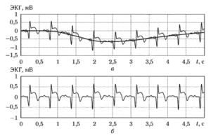 Иллюстрация процедуры устранения дрейфа изоэлектрической линии с использованием сплайн-ннтерполяции