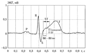Процедура вычисления смешения ST-сегмента ЭКГ