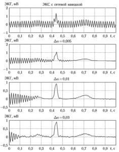 Устранение сетевой наводки из электрокардиосигнала при разных значениях шага адаптации Де.
