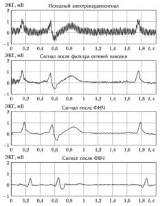 Пример последовательной фильтрации фрагмента электрокардиосигнала с использованием цепочки цифровых фильтров