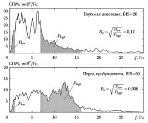Пример графиков СПМ для двух анализируемых состояний анестезии