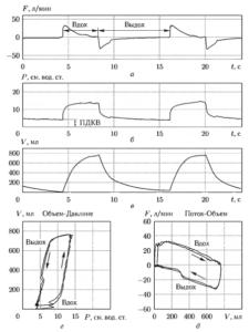 Пример графиков изменения потока (а), давления (б) и объема (в), а также петель «Объем-Давление» (г) и «Поток Объем» (д) в режиме ИВЛ с контролируемым давлением