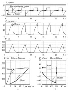 Пример графиков изменения потока (а), давления (б) и объема (в), а также петель «Объем-Давление» (г) и «Поток-Объем» (д) в режиме достижения заданного объема