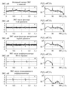 Фрагмент ЭКГ, содержащий помехи (о) и график спектральной плотности мощности для этого фрагмента (б).