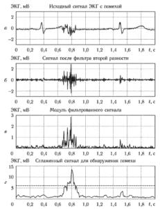 Пример использования второй разности отсчетов для оценки интенсивности миографической помехи в ЭКГ: