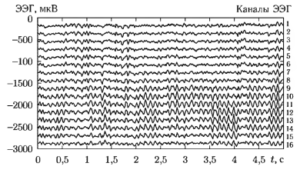 Графики синхронно снятых 16 каналов ЭЭГ