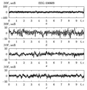 Фрагменты ЭЭГ-сигнала при разных стадиях анестезии