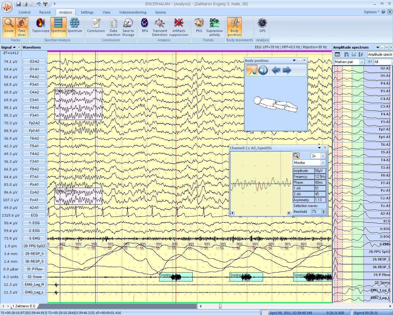Спектральный анализ, положение тела пациенат, спекрт мощности и увеличенный просмотр сигнала.