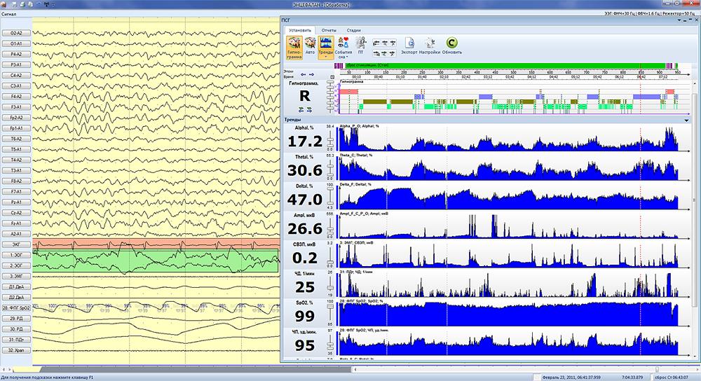 Тренды и гипнограмма
