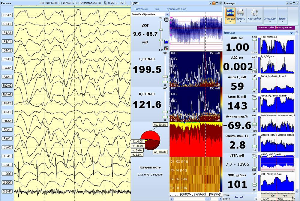 Тренды нейромониторинга и тренды ЦФМ