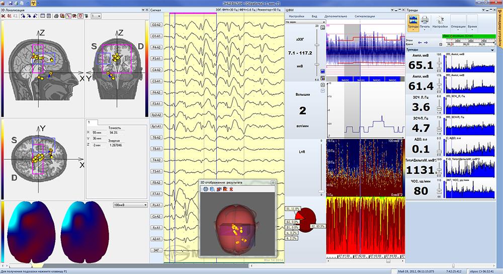 Тренды нейромониторинга, тренды ЦФМ и 3D-локализация