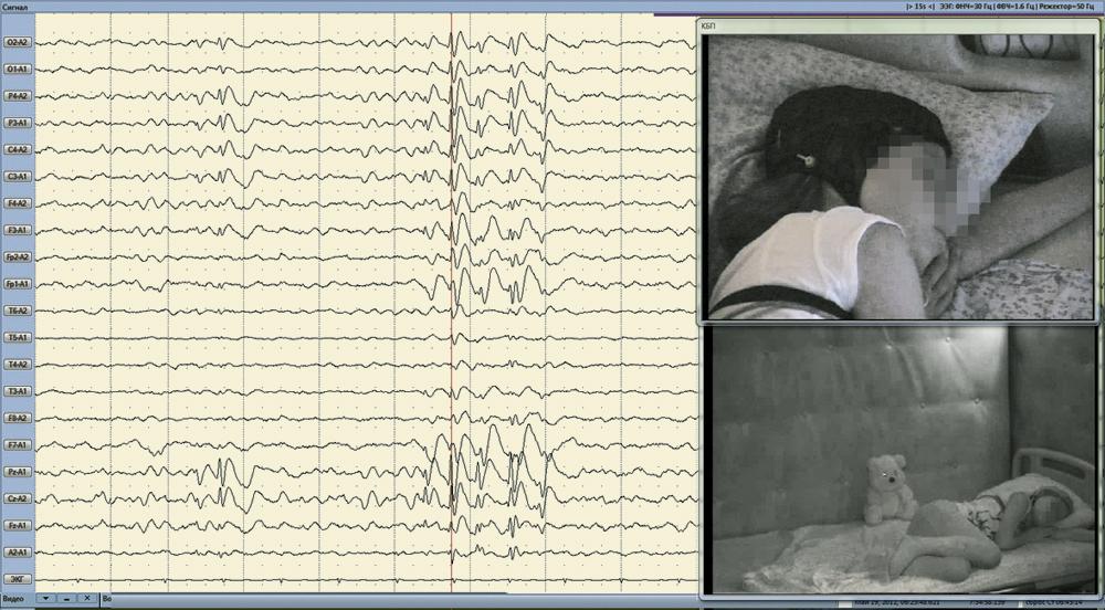 Во время сна регистрируются вспышки, отдельные ЭПИ-комплексы и вспышки ЭПИ-активности с наибольшей выраженностью в центрально-теменной зоне