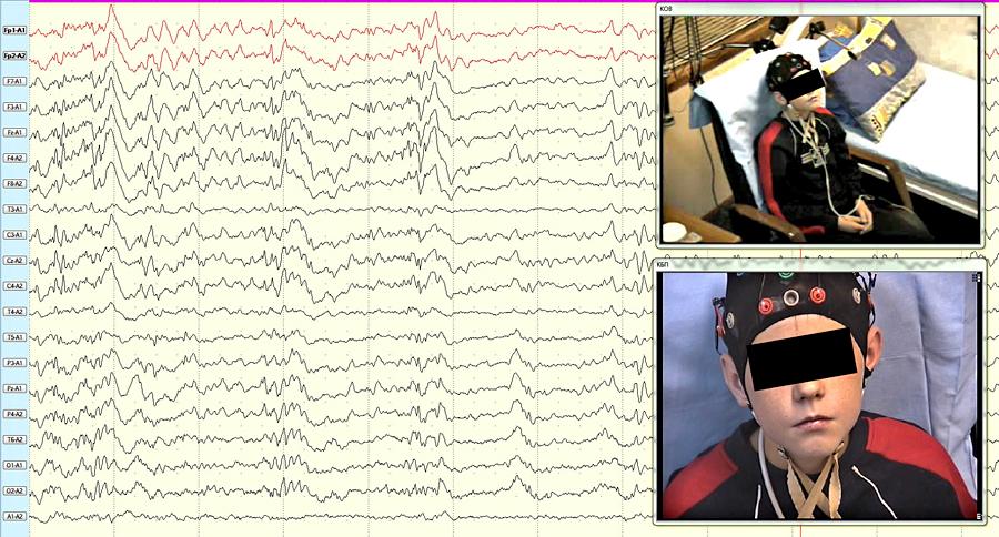 Мониторирование ЭЭГ