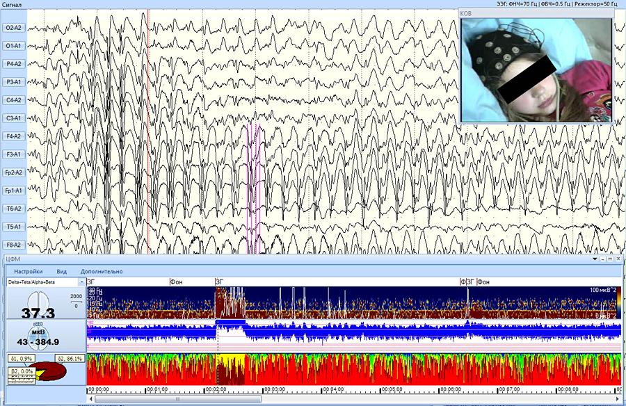 Синхронизированное мониторирование ЭЭГ, видео-изображения и трендов сжатого спектра, аЭЭГ и ИСМД