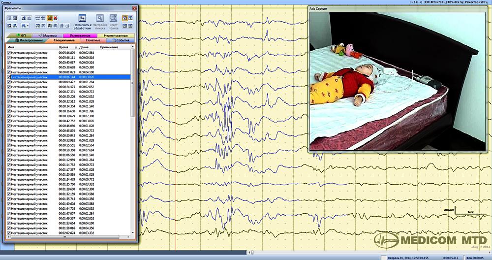 С помощью детекторов автоматически выделяются периодические вспышки ЭПИ-активности