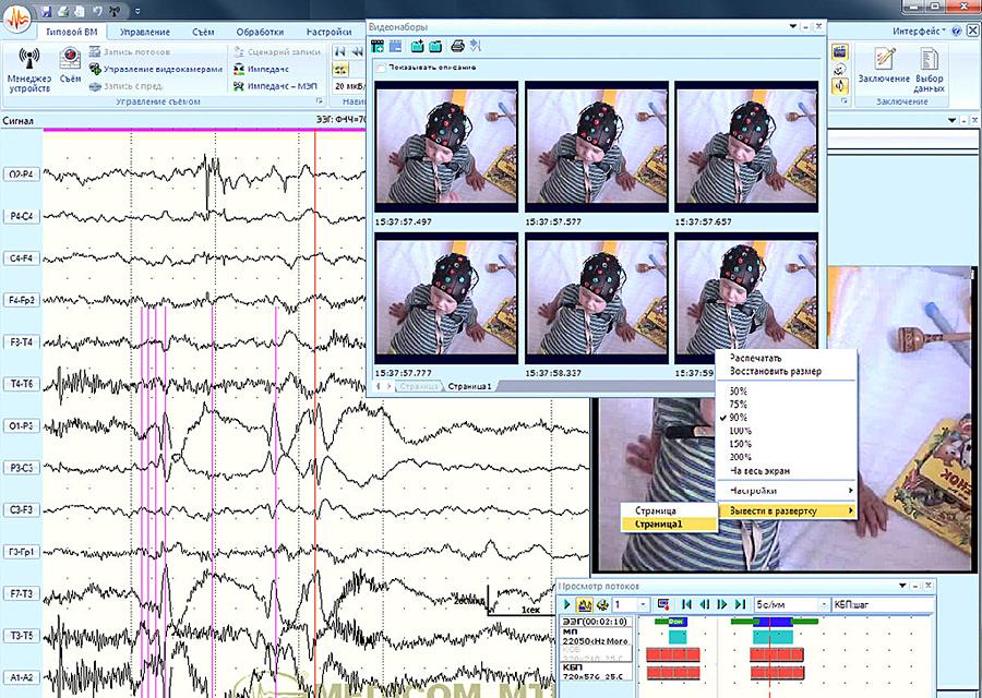 Выбор диагностически значимых видеоданных и фрагментов ЭЭГ для создания видеоролика или для вывода на печать