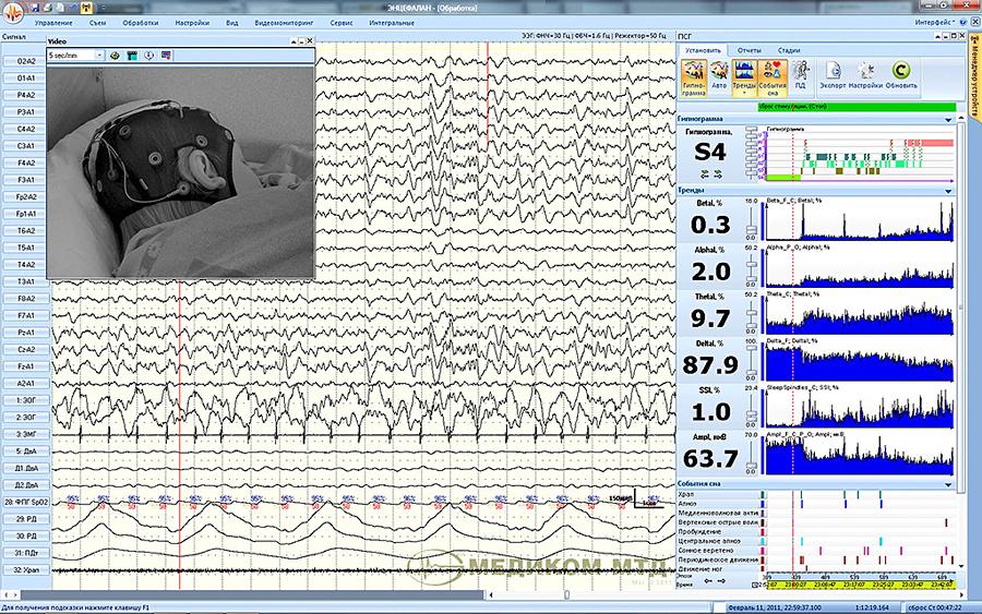 Просмотр данных ЭЭГ-ПСГ-видеомониторинга, построенной гипнограммы, трендов показателей и событий сна