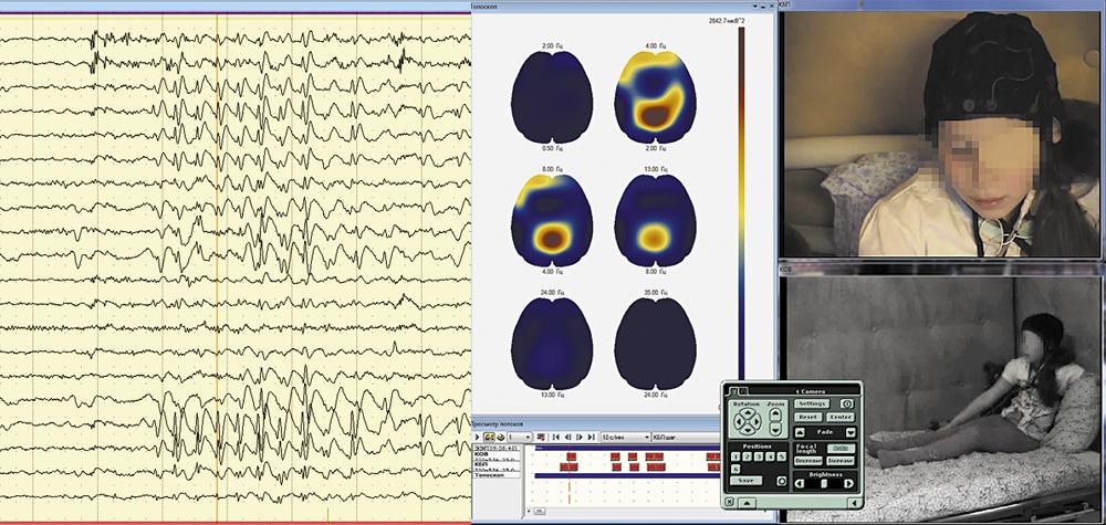 Синхронный просмотр данных ЭЭГ-видеомониторинга в режиме топоскопа наглядно демонстрирует наличие фокуса ЭПИ-активности в теменной зоне