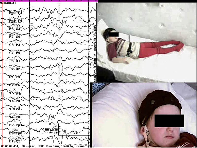 Формирование видеоролика с диагностически значимыми фрагментами исследования