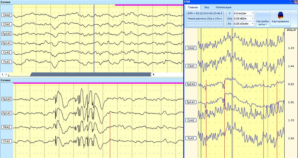 Пример опережающего изменения DCp перед возникновением эпилептиформного разряда