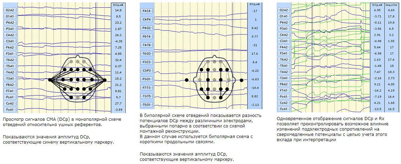 Просмотр сигналов СМА (DCp) в монополярной схеме отведений относительно ушных референтов
