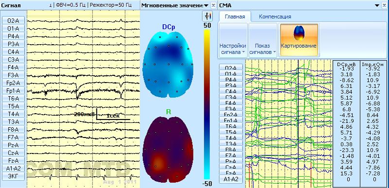 Синхронный просмотр ЭЭГ, графиков DCp и Rx, карт мгновенных значений DCp и Rx
