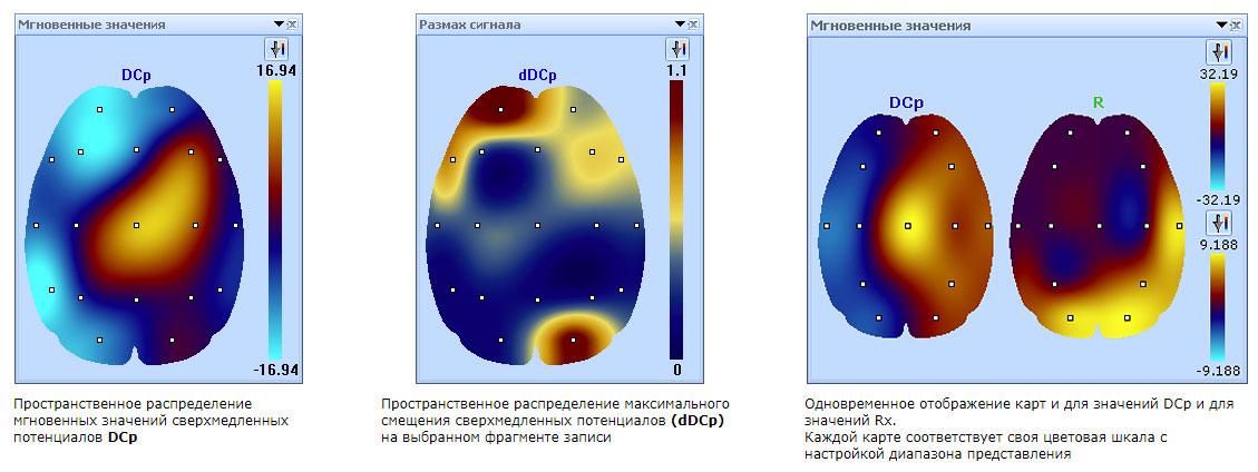 Пространственное распределение значений