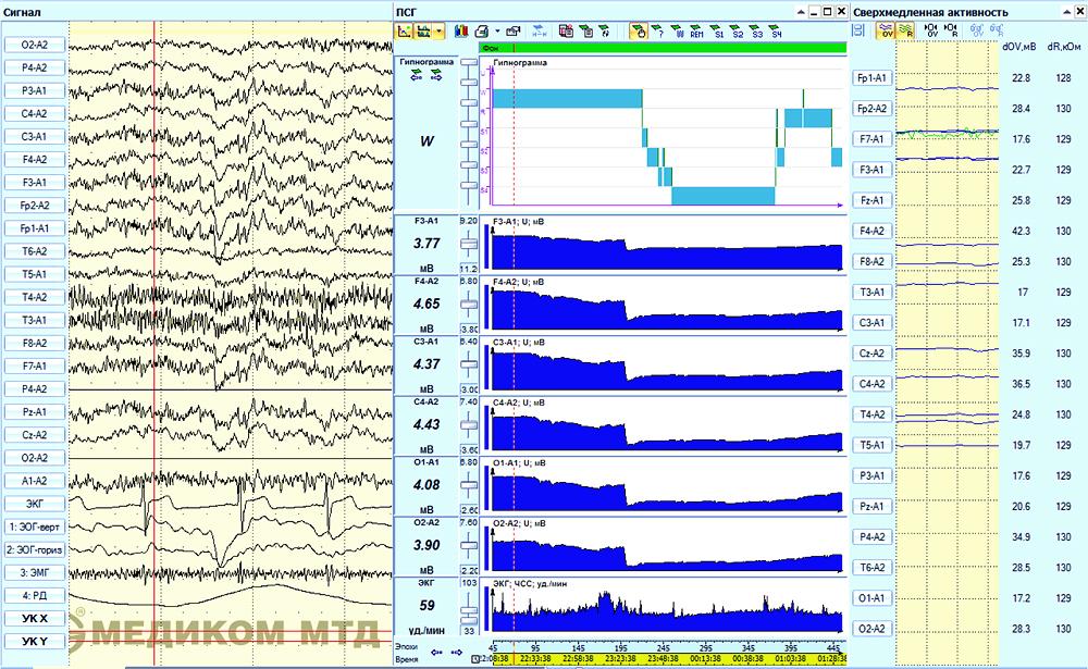 Анализ СМА в процессе проведения ночных сомнологических исследований