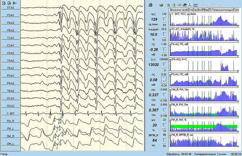 Одновременное представление нативных сигналов (ЭЭГ, ЭКГ, РЭГ) и покардиоцикловой динамики изменения физиологических показателей включая и уровень постоянного потенциала