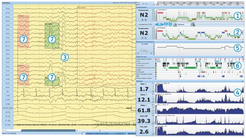 Пример расположения информации при обработке ЭЭГ/ПСГ исследований