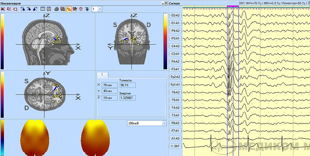 3D-локализация фокуса эпилептиформной активности в лобной области