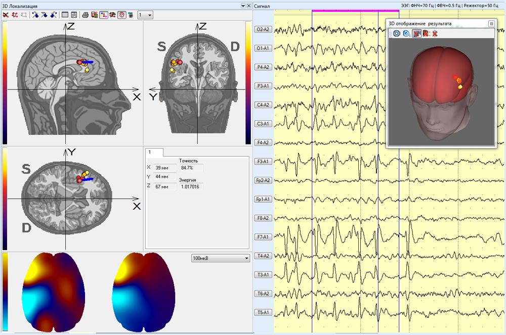 Результаты трехмерной локализации фрагмента записи ЭЭГ