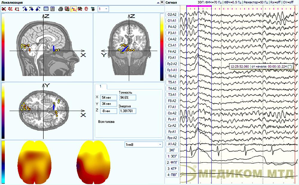 Пример локализации фрагмента ЭЭГ с учетом влияния электроокулограммы