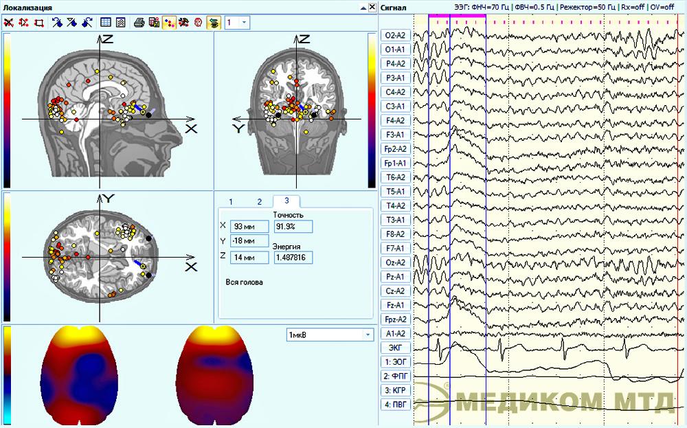 Пример локализации фрагмента ЭЭГ без учета влияния электроокулограммы