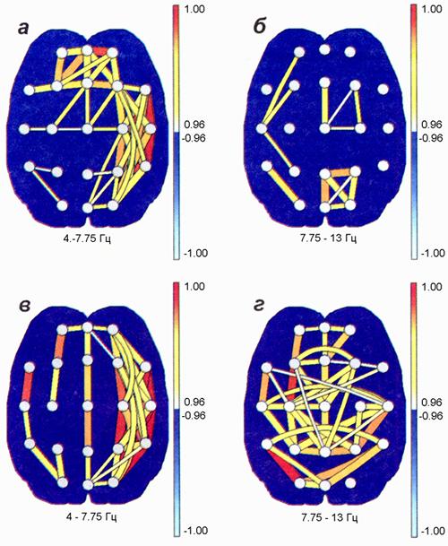 Формирование кросс-корреляционных связей после проведения курса немедикаментозной реабилитации на основе биологической обратной связи (БОС-тренинг)