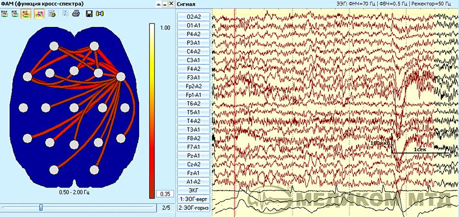 Пошаговое формирование схем межцентральных связей для функции кросс-спектра