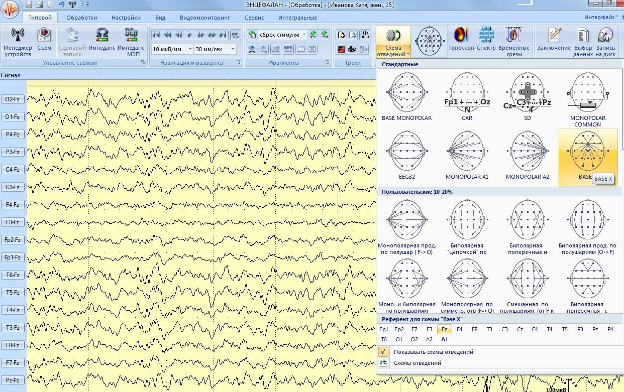 ЭЭГ-исследования могут проводитться в различных схемах отведений
