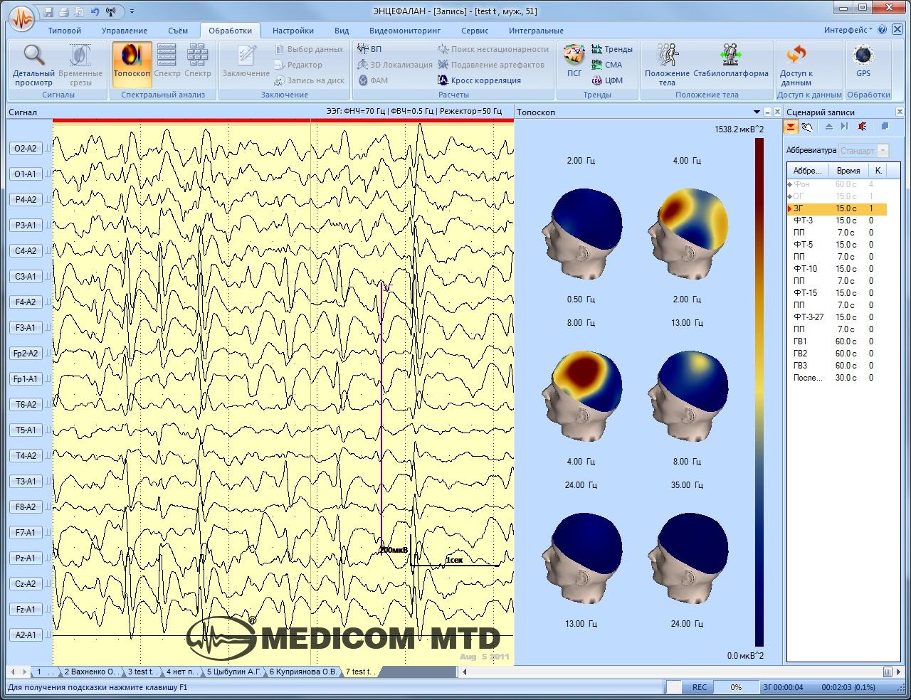 Трехмерное топическое отображение спектральных характеристик ЭЭГ