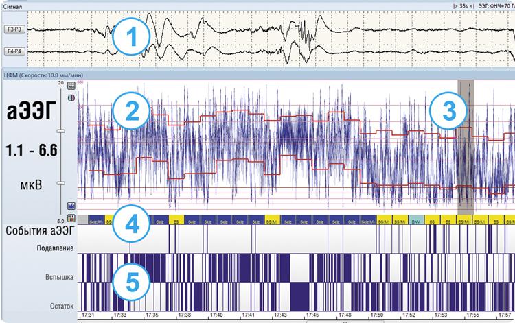Отображение данных на мониторе церебральных функций «Энцефалан-ЦФМ». Вариант «Профессиональный»
