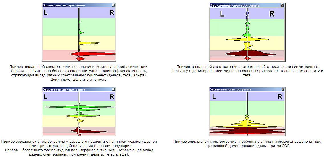 Зеркальные спектрограммы