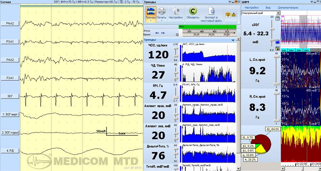 Синхронный мониторинг ЦФМ и нейромониторинг