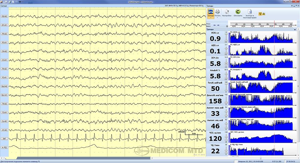 Период мониторирвания при бессознательном состоянии пациента