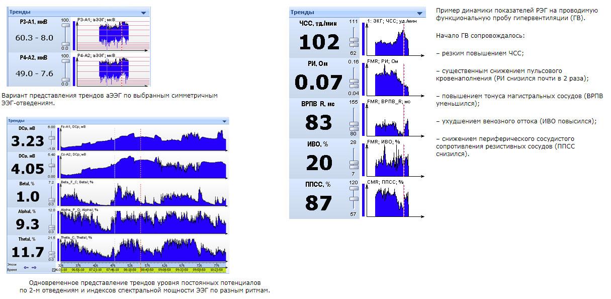 Одновременное представление трендов DCp по 2-м отведениям и индексов спектральной мощности ЭЭГ по разным ритмам