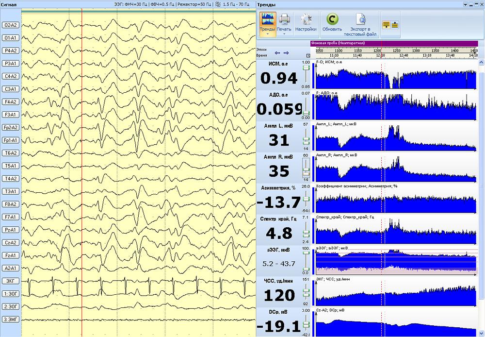 Пример одновременной визуализации физиологических сигналов и трендов расчетных показателей