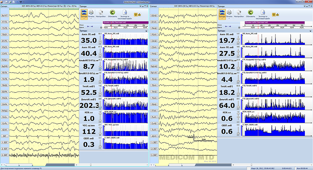 Сопоставление паттернов ЭЭГ в сплит-режиме на разных фрагментах одного и того же исследования